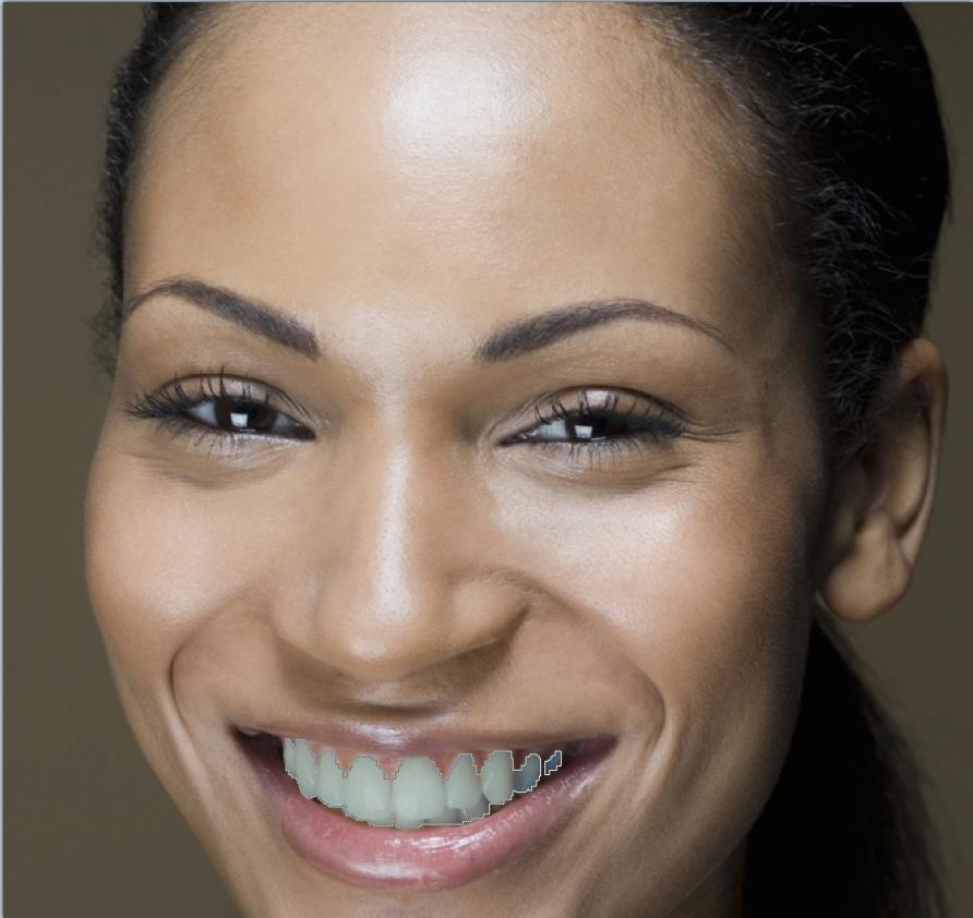 отбеливание зубов в минске отзывы